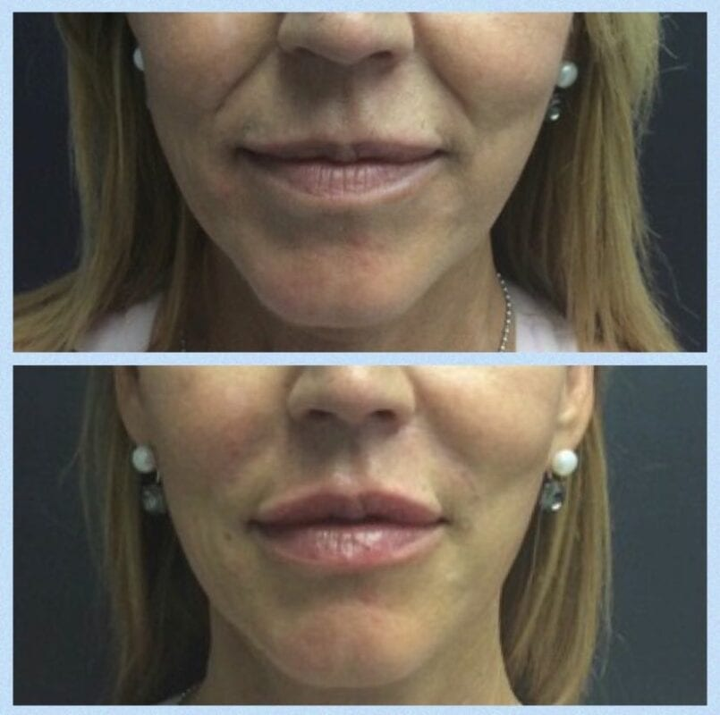 Smile line before and after