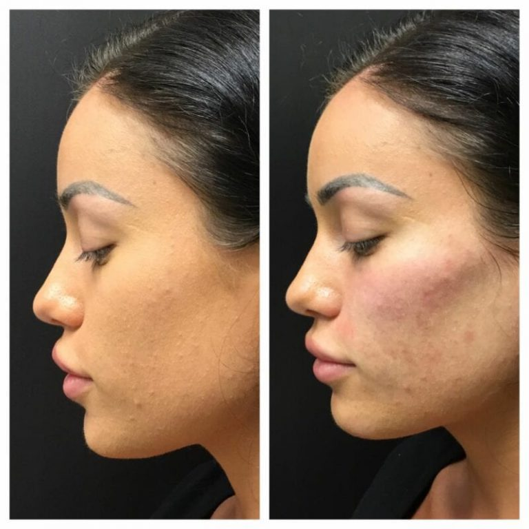 mid-face filler before and after