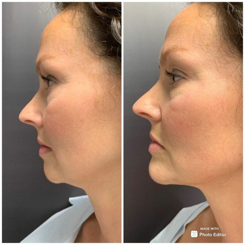 Chin filler before and after