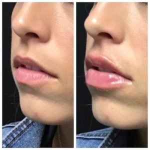 Woman before and after lip filler