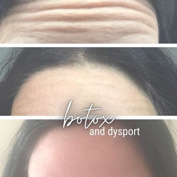 Wrinkles before and smooth forehead after botox