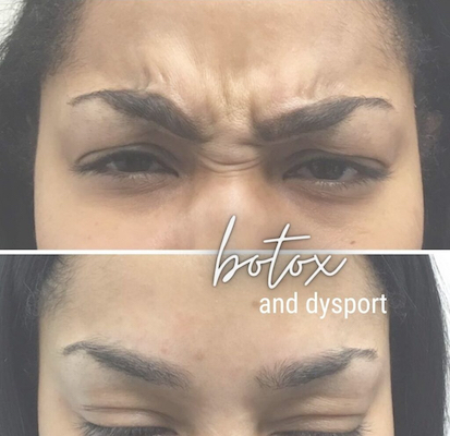 Forehead wrinkles before and after botox