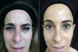 Botox for face