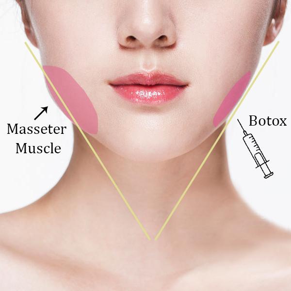 botox masseter muscles